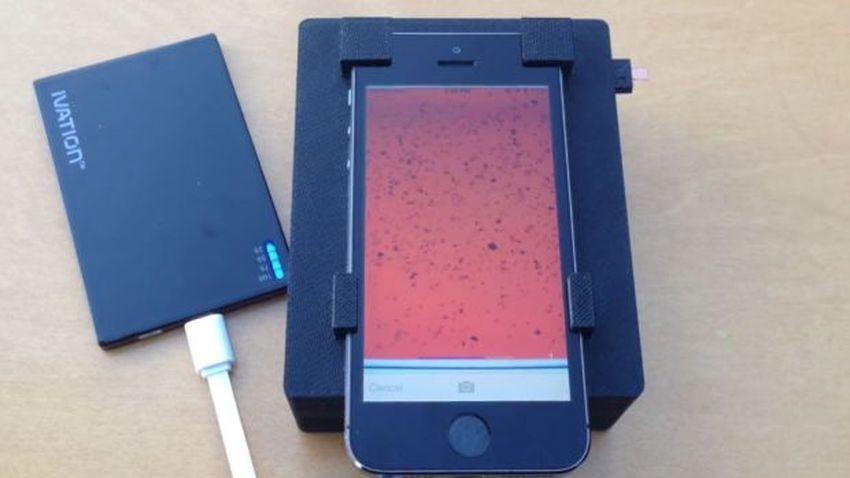 iPhone nowoczesną metodą badania chorób