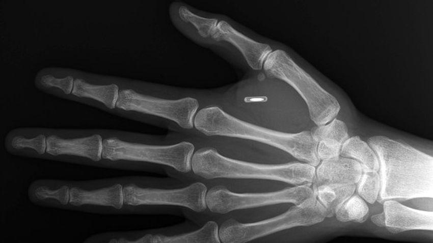 Photo of Implant w ciele człowieka – technologiczny postęp coraz bliżej